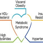 Metabolic Syndrome, Causes and Symptoms