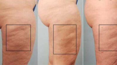 Best cellulite treatments that actually work